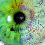 New paradigm shift in iridology.