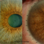 Radical change of iris colour