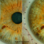 Increase in a Pigmentation on the iris (TA of the liver)