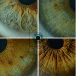 Segni iridei e pupillari