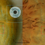 Iridian sign: New Stain in left iris.