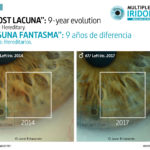 Iris sign: Lacuna. 9-year evolution.