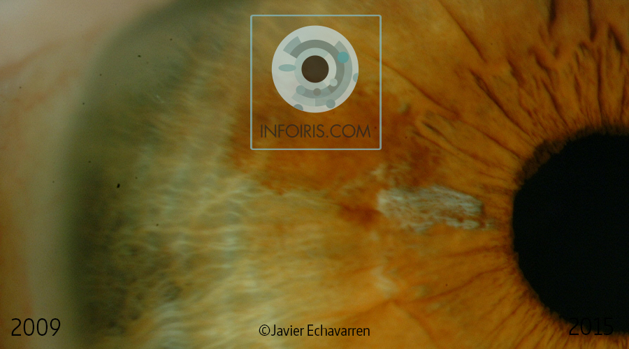 Case no. 6. Abrasion of the iris tissue. Loss of pigmentation