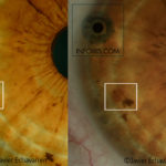The iris changes over the years (II)